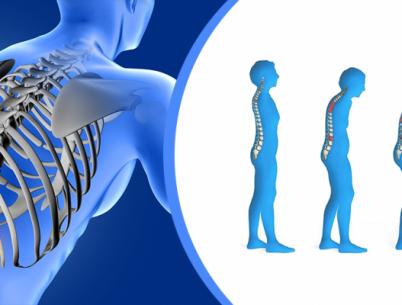 Остеопороз. Диагностика и лечение в Бутово