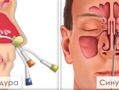 Лечение гайморита без прокола — ЯМИК