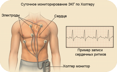 Холтеровское мониторирование в клинике ЛеВита Бутово