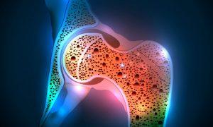 Что такое остеопороз. Факторы риска развития, симптомы, лечение в клинике ЛеВита в Бутово.