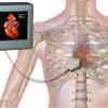 УЗИ сердца – Эхокардиография