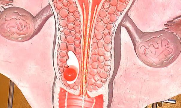 Дисплазия влагалища и шейки матки