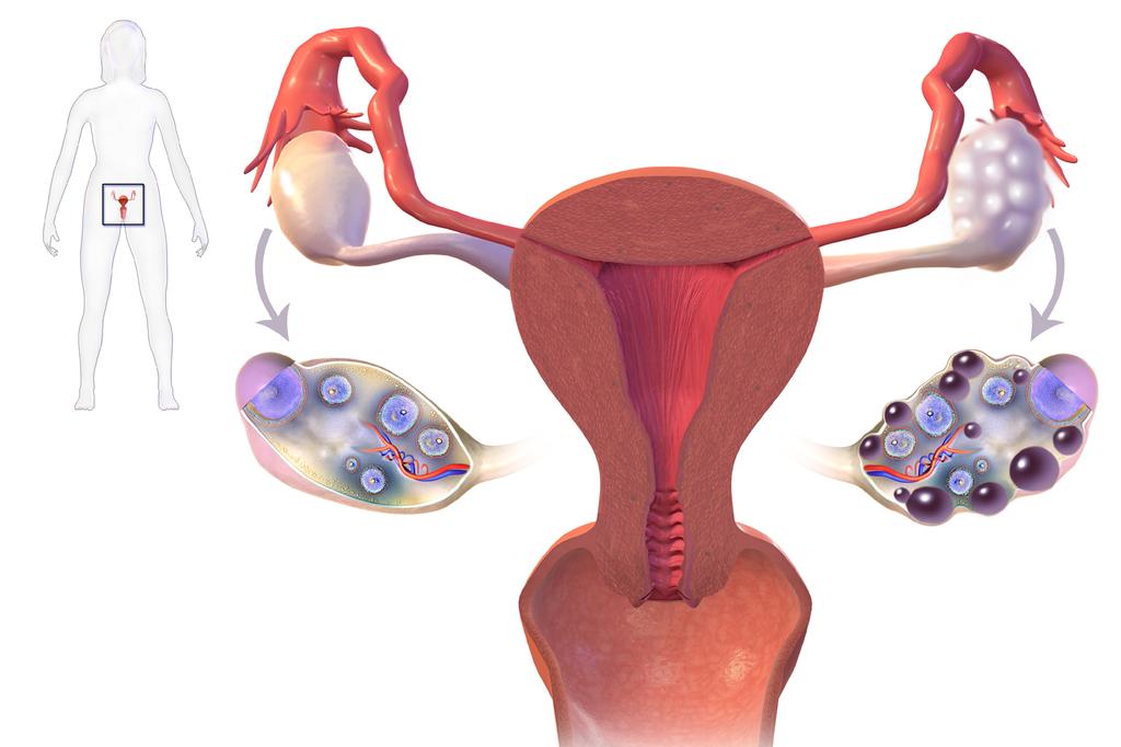 Поликистоз яичников (СПКЯ)